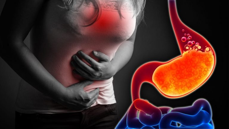 Is Acid Really the Cause of Reflux?