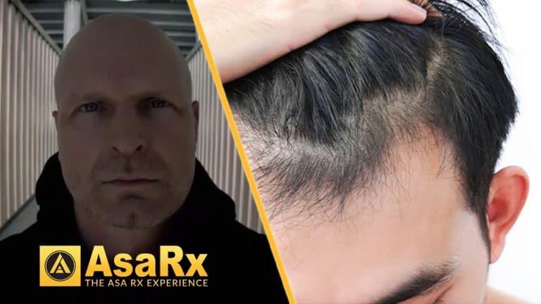 Reversing Baldness