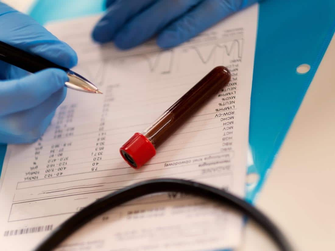 4 Blood Tests You Should Have Every Year