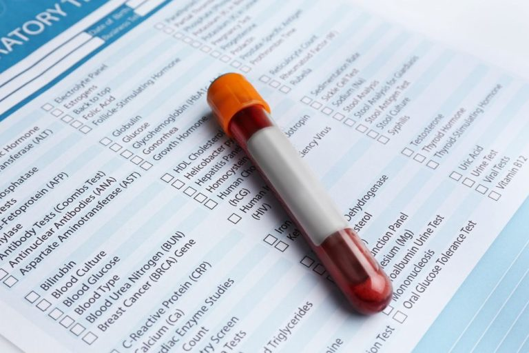 2 Persistent Myths About Blood Work